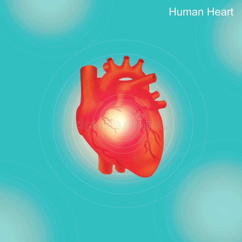 Coeur humain L'angioplastie est une procédure endovascular à élargir rétréci ou ob illustration de vecteur