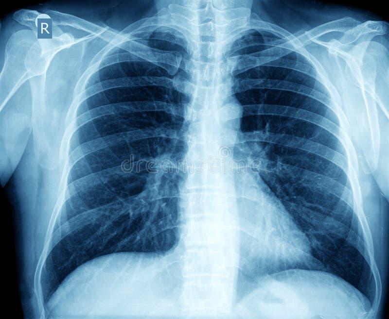 Coffre de rayon X images stock
