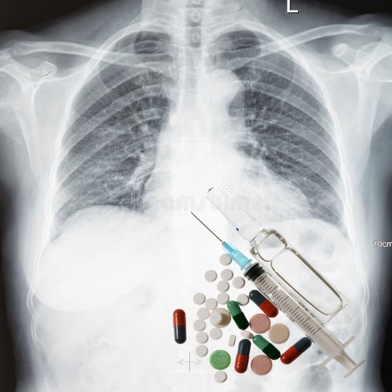Coffre et médecine de rayon X images libres de droits