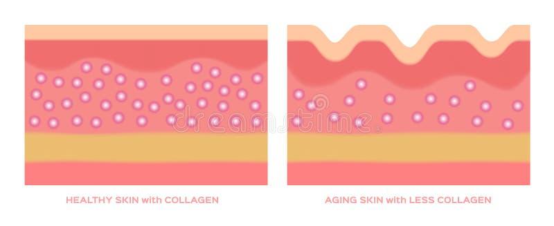 Colágeno en un gráfico más joven de la piel y del envejecimiento ilustración del vector