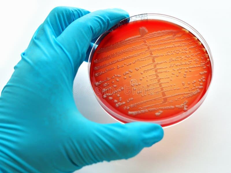 Colônias das bactérias foto de stock royalty free