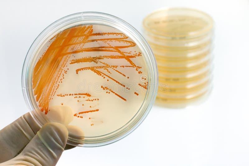 Colônias do estreptococo agalactações das bactérias no meio de cultura imagens de stock royalty free