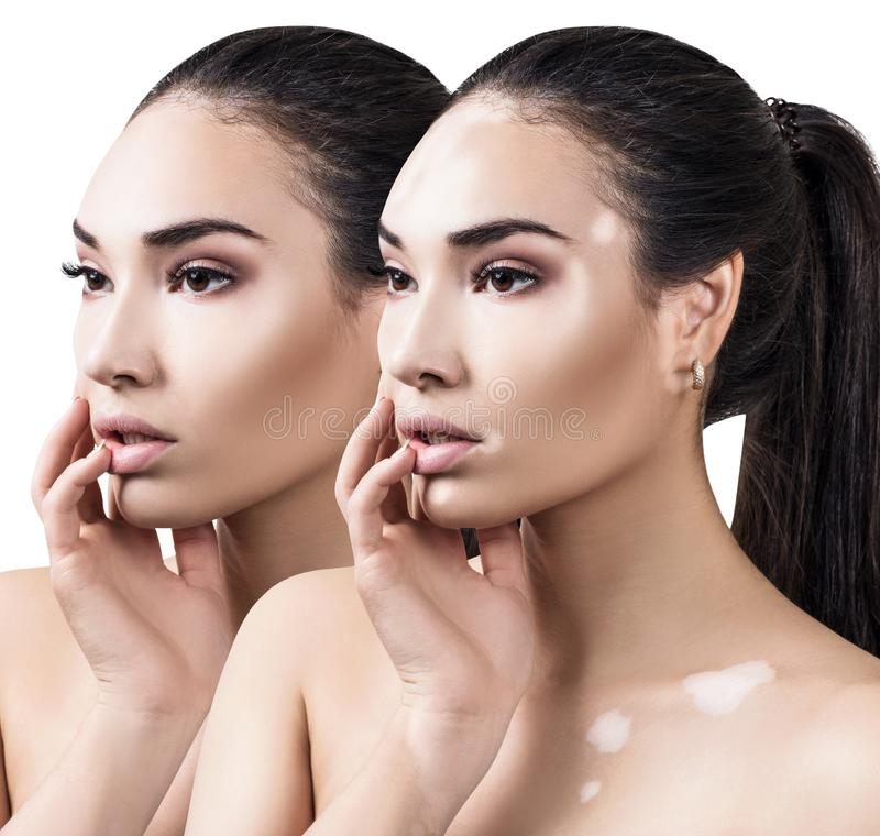 Colagem da mulher bonita com doença do vitiligo fotografia de stock royalty free