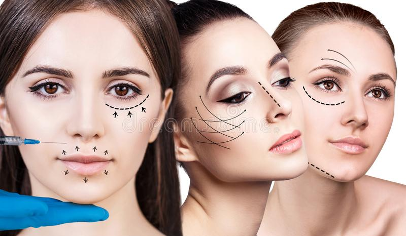 A colagem da mulher bonita obtém injeções do facial da beleza fotos de stock royalty free