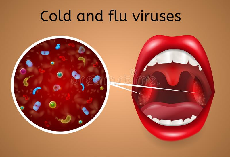 Cold and Flu Viruses Symptoms Vector Concept. Cold and Flu Viruses Vector Concept with Bacteria, Microbes or Viruses under Microscope Magnification on Infected vector illustration