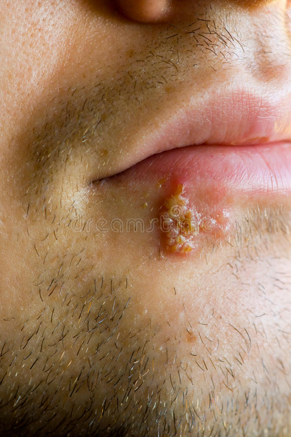 Cold Sores (herpes Labialis) Stock Images