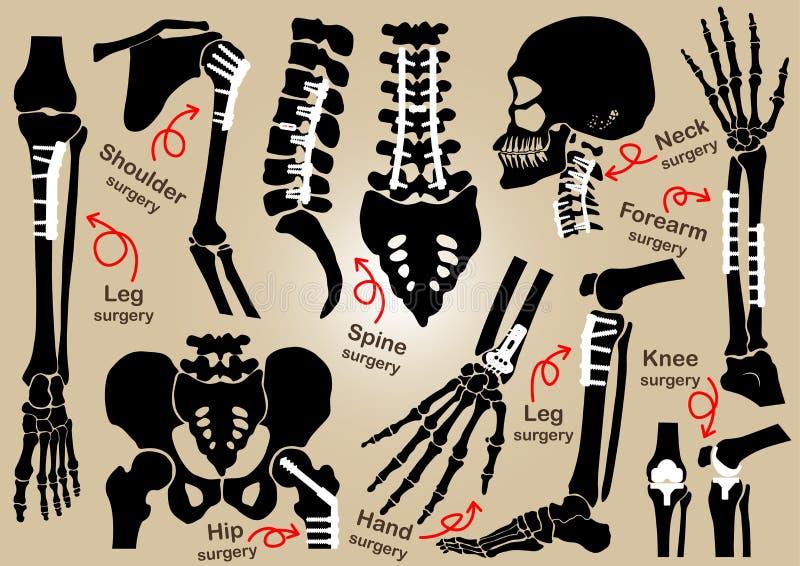 Coleção da cirurgia ortopédica (fixação interna pela placa e pelo parafuso) (crânio, cabeça, pescoço, espinha, sacro, braço, ante ilustração do vetor