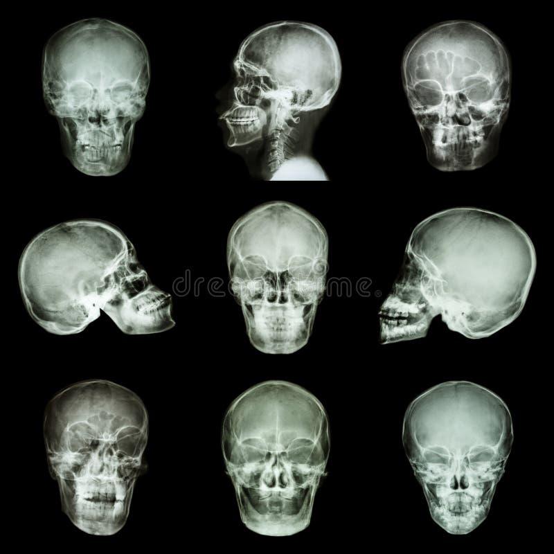 Coleção do crânio asiático imagem de stock royalty free