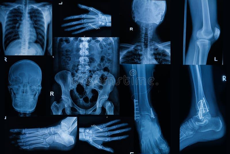 Coleção do raio X, parte múltipla do bon adulto da fratura da mostra imagens de stock