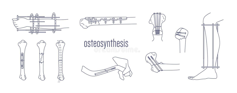 Coleção dos ossos fraturados e dos membros fixados com os dispositivos implantable do metal tirados com linhas de contorno no bra ilustração royalty free