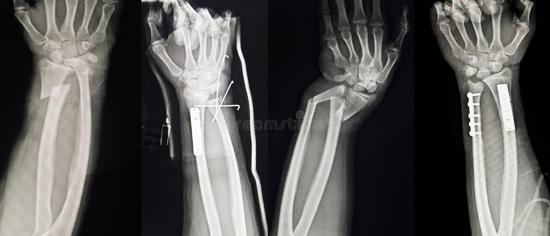Coleção dos raios X humanos que mostram a fratura múltipla da mão fotografia de stock