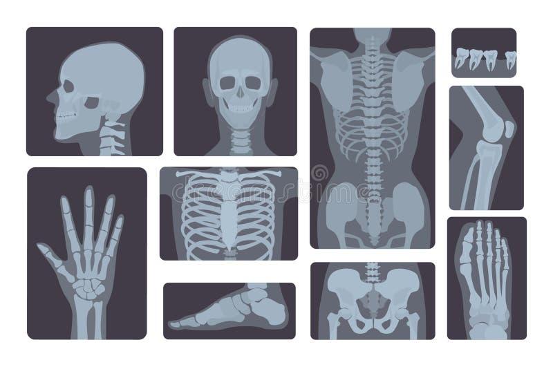 Coleção realística dos tiros do raio X Mão, pé, crânio, pé, caixa, dentes, espinha e outro do corpo humano ilustração royalty free