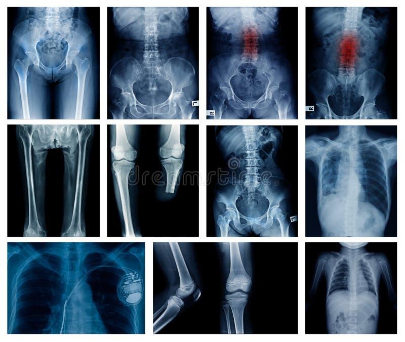 Colección de la radiografía mucha parte del cuerpo foto de archivo libre de regalías