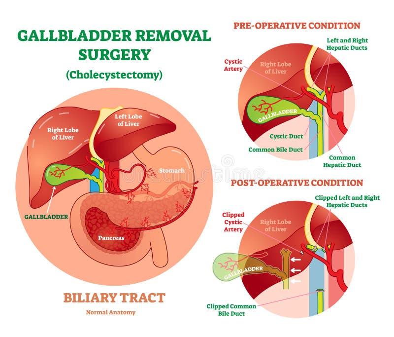 Colecistectomía - cirugía del retiro de la vesícula biliar, diagrama anatómico del ejemplo del vector con condiciones operativas ilustración del vector