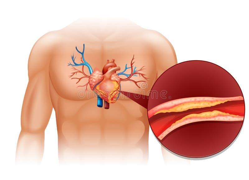 Colesterol do coração no corpo humano ilustração stock