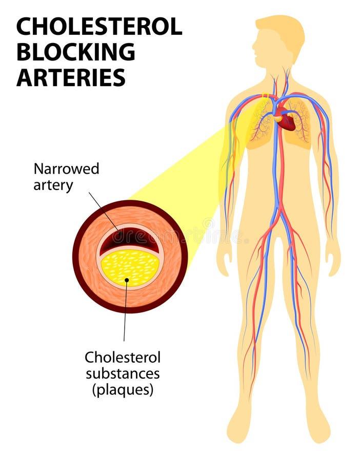Colesterol que bloquea la arteria stock de ilustración
