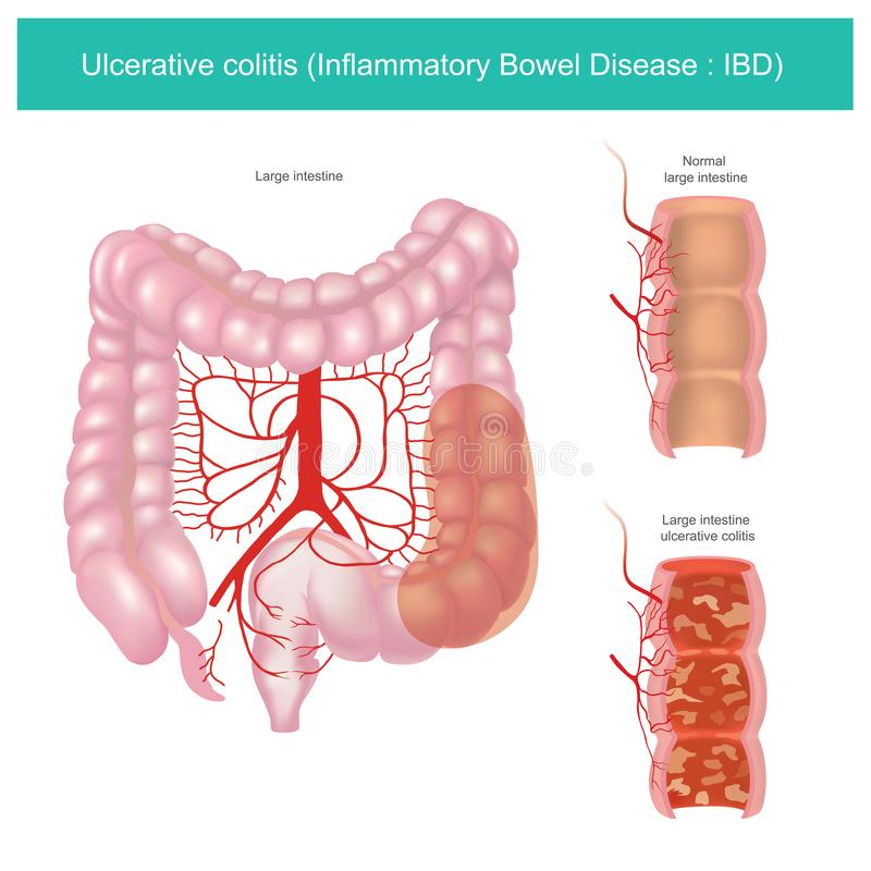 Colite ulc?rative graphique d'illustration illustration stock