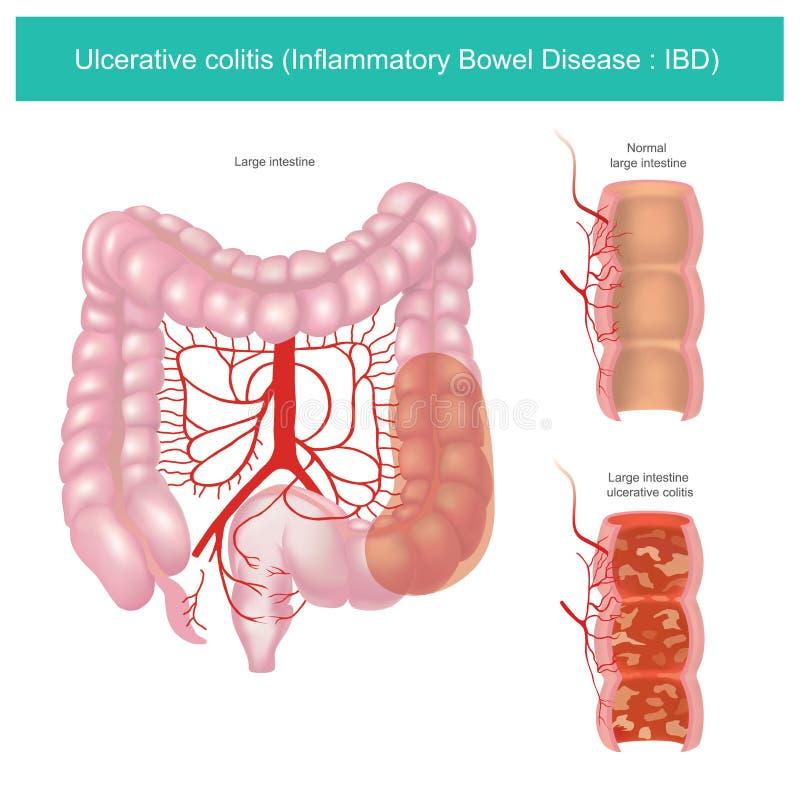 Colitis ulcerosa gr?fico del ejemplo stock de ilustración
