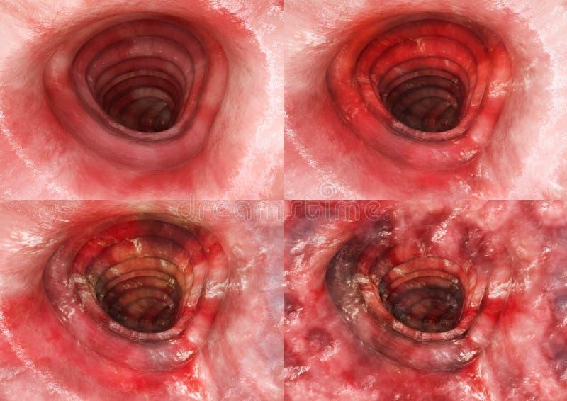 Colitis ulcerosa - wszystkie scen 3D rendering ilustracja wektor