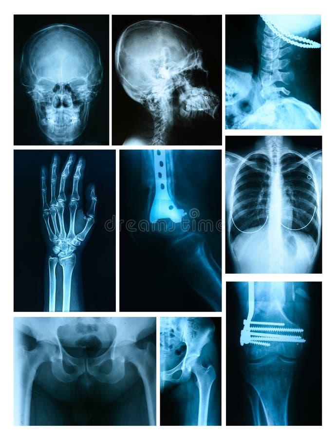 Collage av många röntgar royaltyfria bilder