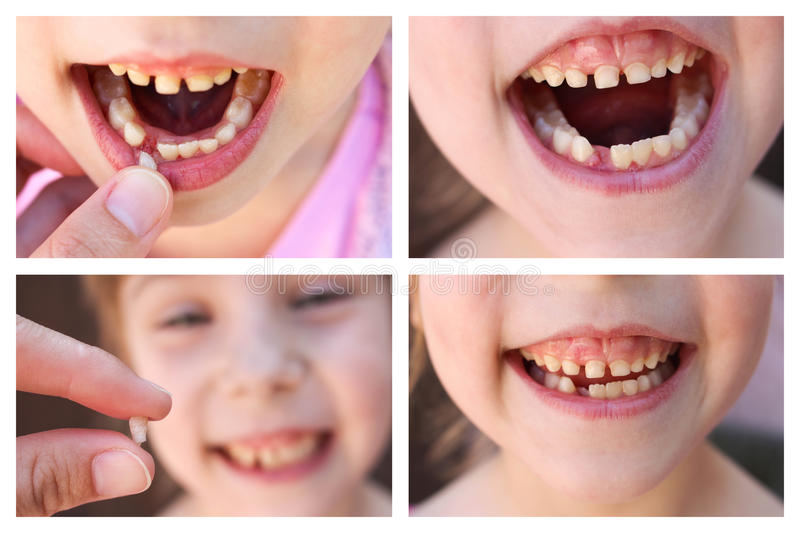A collage of the child has lost the baby tooth. At 6 years old child loose tooth. The girl is holding the tooth in his hand. New molar tooth growing royalty free stock photos