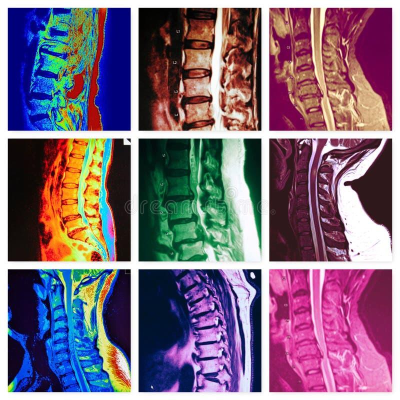 Collage colorido de la patología espinal de las vértebras imagen de archivo libre de regalías
