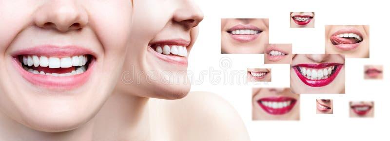 Collage der jungen Frau nahe Collage mit den Gesundheitszähnen stockfoto