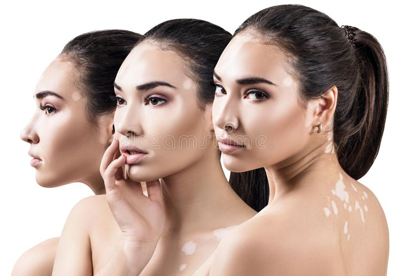 Collage di bella donna con la malattia di vitiligine fotografia stock