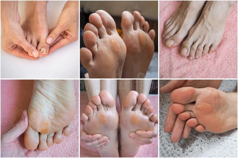 Collage with different views close up of Calluses. Painful corn on foot royalty free stock photos