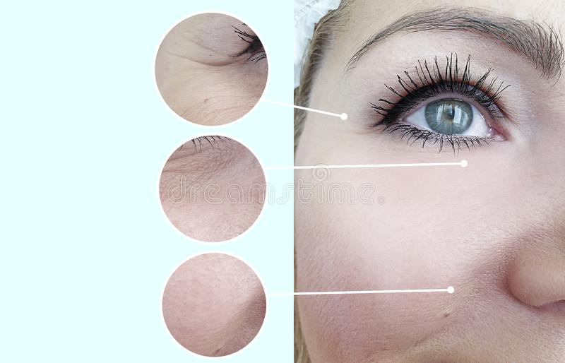 Collage för behandling för cosmetology för korrigering för kvinnaframsidaskrynklor före och efter royaltyfria foton