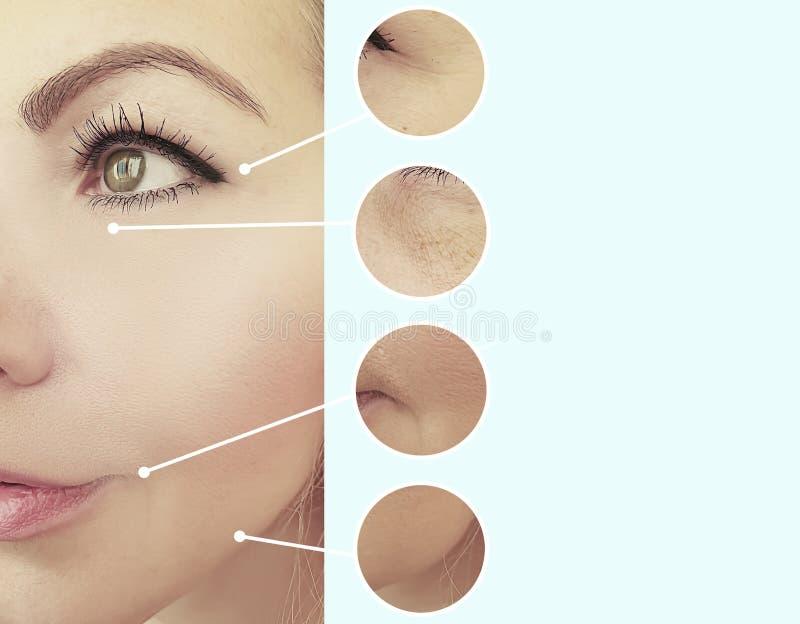 Collage för behandling för cosmetology för korrigering för skillnad för kvinnaframsidaskrynklor före och efter arkivfoton