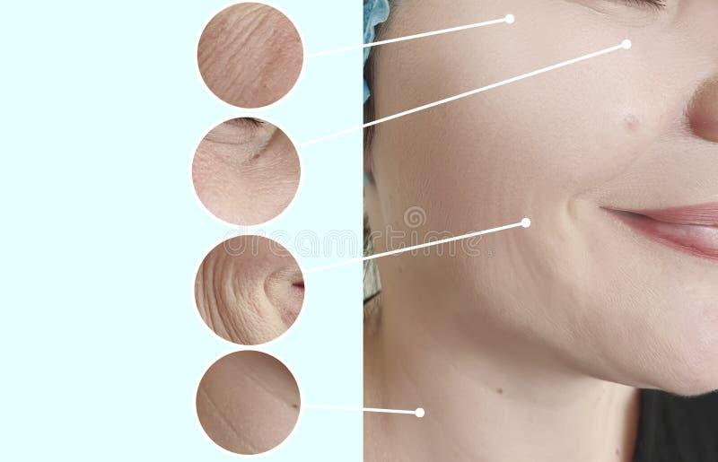 Collage för behandling för cosmetology för korrigering för skillnad för kvinnaframsidaskrynklor före och efter resulttherapy lyft arkivfoto