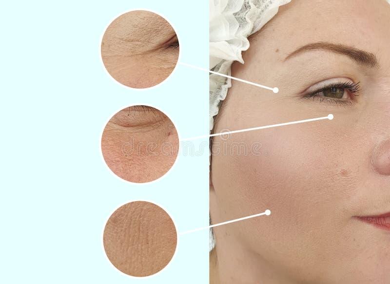Collage för behandling för cosmetology för korrigering för skillnad för terapi för kvinnaframsidaskrynklor före och efter lyftand arkivfoto