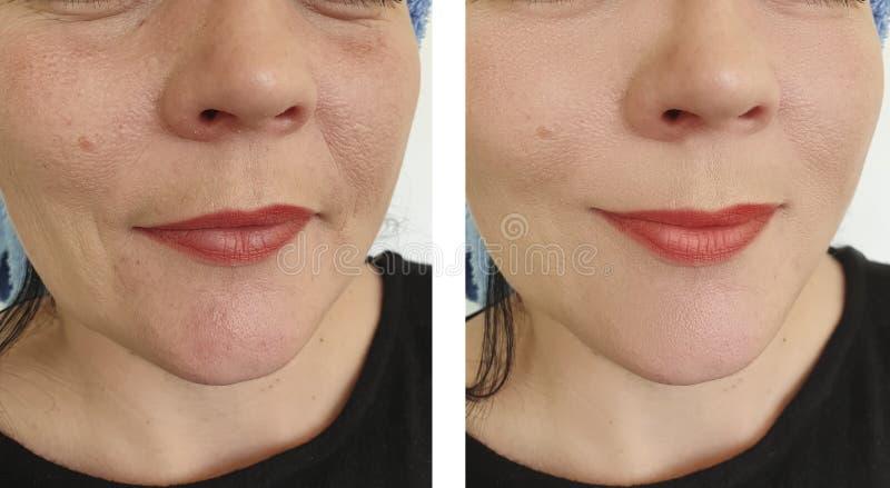 Collage för korrigering för borttagning för kvinnaframsidaskrynklor före och efter arkivfoton