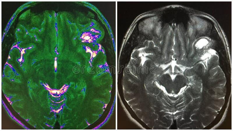 Collage frontal inférieur de structure de dnet de cerveau de Mri image stock