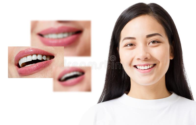 Collage of healthy smiling people. Beautiful asian young woman with white veneers and perfect smile. Tooth care dental medicine. stock photography