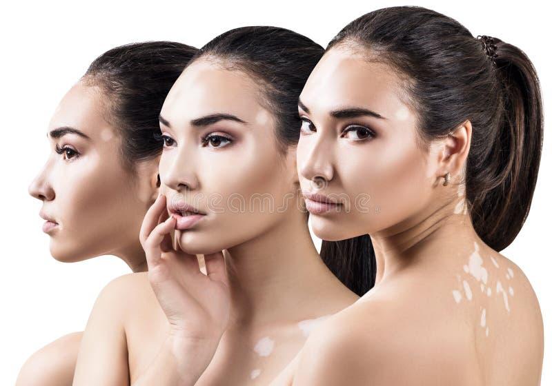 Collage van mooie vrouw met vitiligoziekte stock fotografie