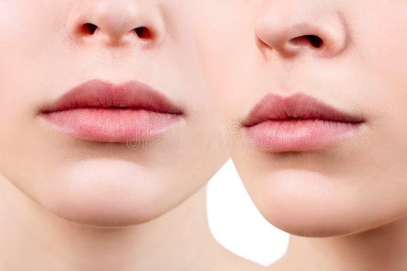 Collage van perfecte en mollige vrouwelijke lippen royalty-vrije stock fotografie