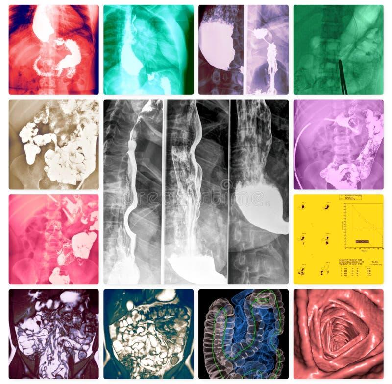 Collage variopinto degli esami del sistema di gastroenterologia illustrazione vettoriale