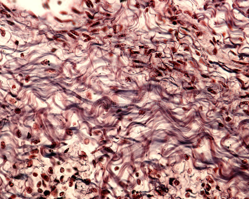 Collagen fibers. Silver stain. Bundles of collagen fibers in a connective tissue stained with a silver method. The collagen fibers show a typical wavy appearance stock photo