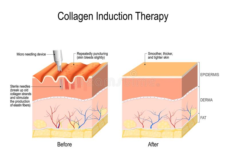 Collagen induction therapy. microneedling the skin stock illustration