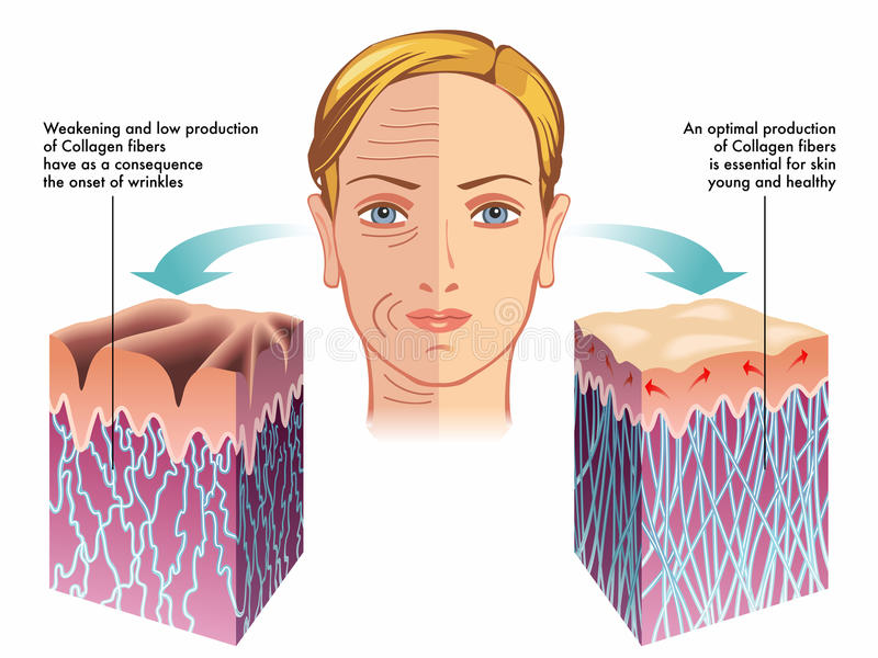Collagen. Medical illustration of the role of collagen in the process of skin regeneration