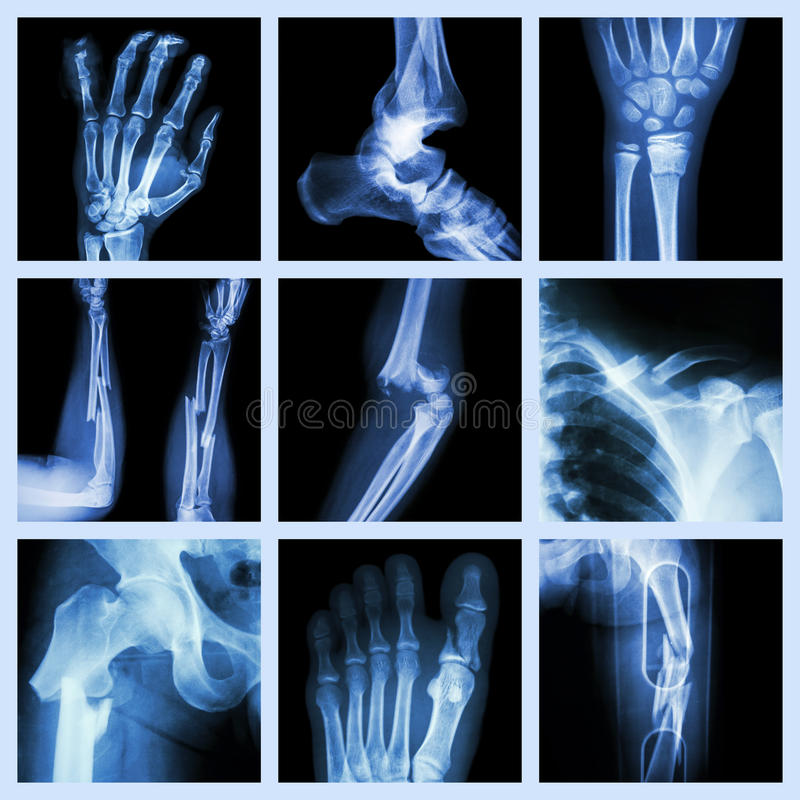 Collection of bone fracture royalty free stock images
