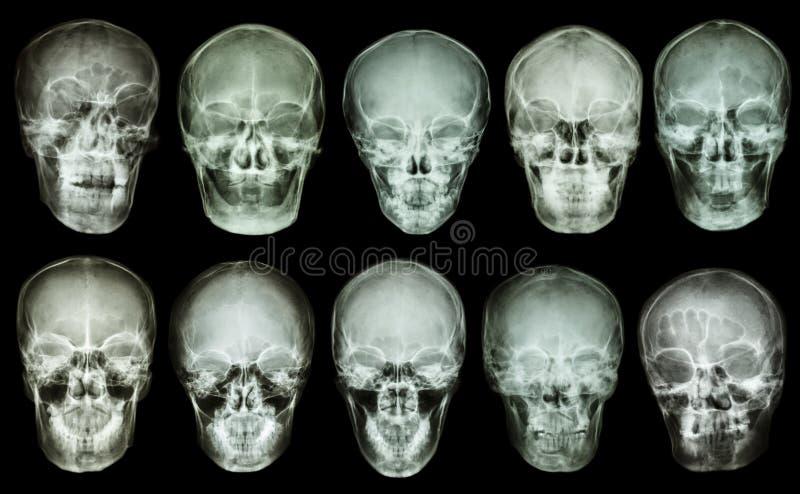 Collection de crâne asiatique (vue antérieure) (personnes thaïlandaises) images libres de droits