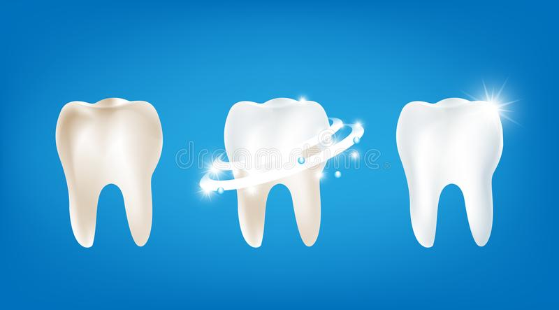 Collection of dirty clean and strong white tooth wiht glittering stock illustration