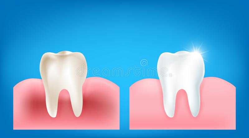 Collection of dirty tooth and gum compare with clean and strong vector illustration