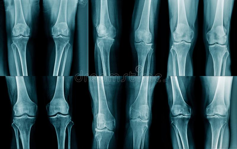 Collection leg x-ray. Collection x-ray OA knee and leg x-ray royalty free stock images