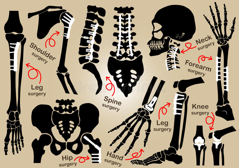 Collection of Orthopedic surgery ( Internal fixation by plate and )( skull , head , neck , spine , sacrum , arm , forearm , vector illustration