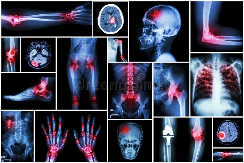 Collection x-ray multiple disease (arthritis,stroke,brain tumor,gout,rheumatoid,kidney stonepulmonary royalty free stock image