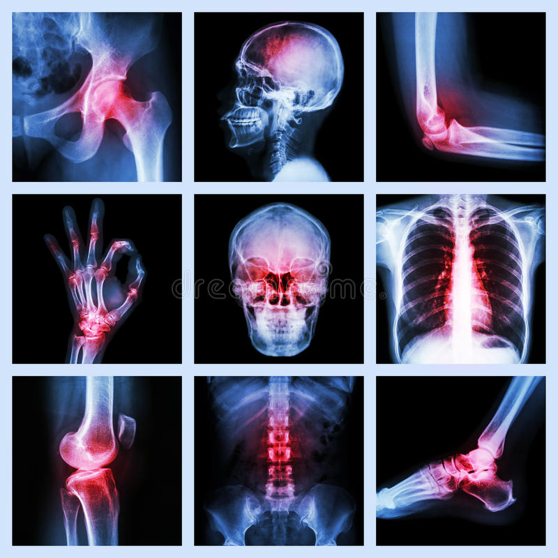 Collection X-ray and multiple injury royalty free stock image